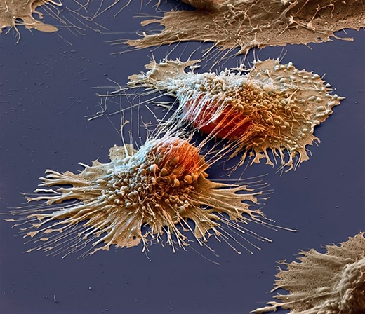 Tế bào ung thư dưới kính hiển vi